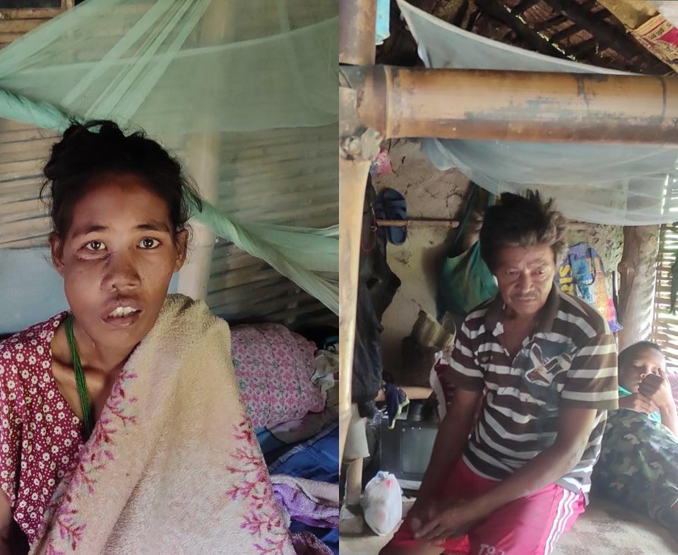 इटहरीकी छवि तामाङको दाँत निकाल्दा गिजामा क्यान्सर, सहयोग गर्न परिवारको अपिल